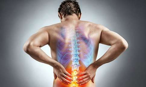 Natural Remedies for Sciatic Pain